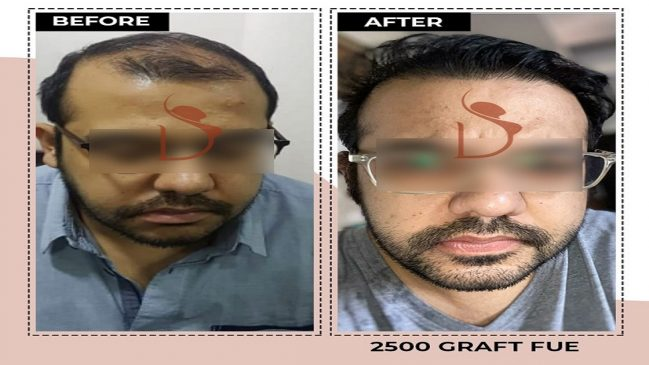 is Hair Transplant safe?